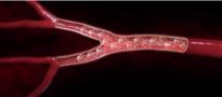 Miomas uterinos - Arterias