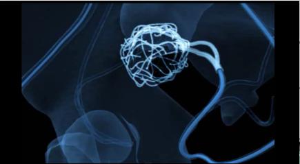 Resonancia Magnética - Mioma uterino