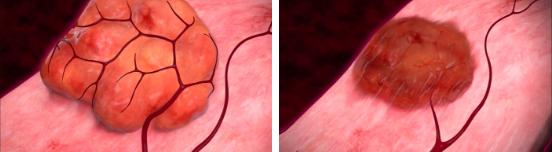 Miomas uterinos - Corrección