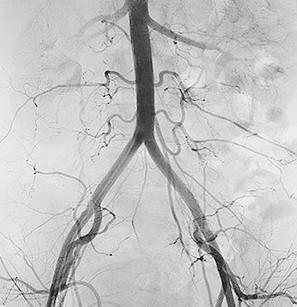 arteriografia en DF