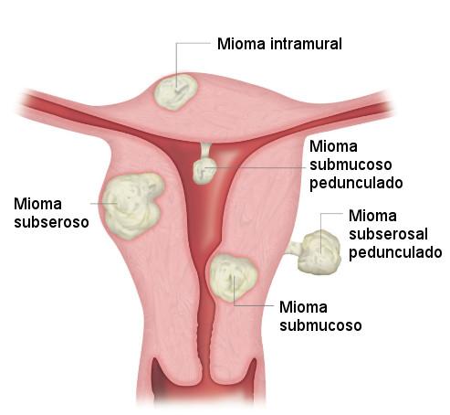 tipos de miomas uterinos