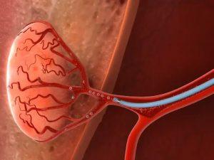 embolización de arterias prostáticas